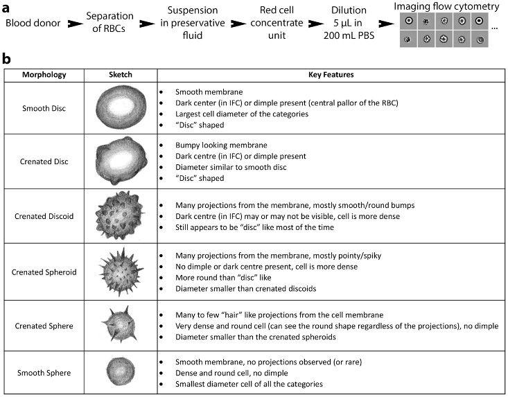 Figure 7. RBC morphologies.