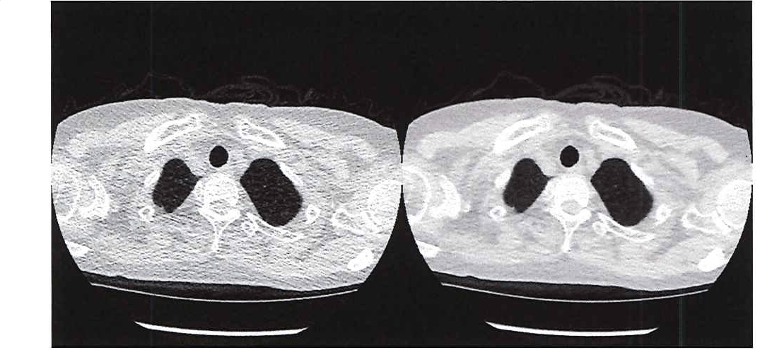 Figure 1. Comparing the image quality of ultra-low-dose CT with a traditional CT.