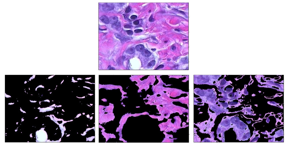 Using clustering to distinguish between tissue types in an image of body tissue stained with hematoxylin and eosin (H&E).