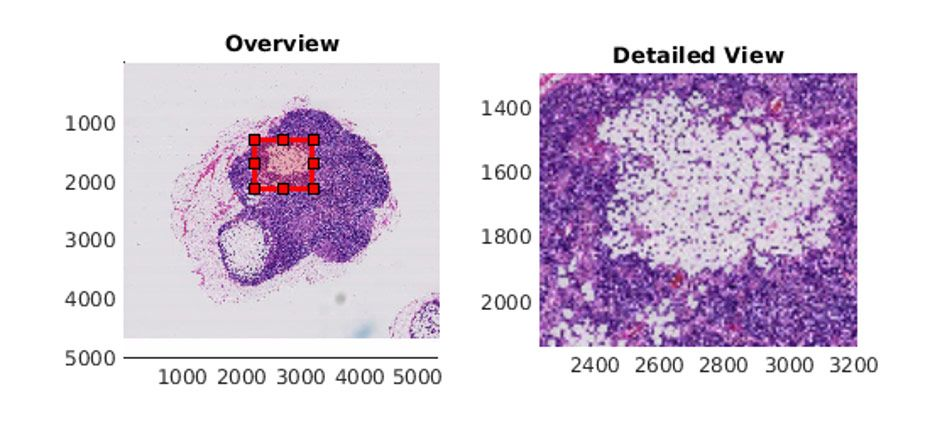 Image of a lymph node containing tumor tissue displayed with <code>bigimageshow</code> in MATLAB.
