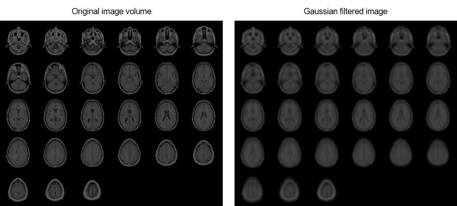This example shows how you can smooth MRI images of a human brain using 3D Gaussian filtering.