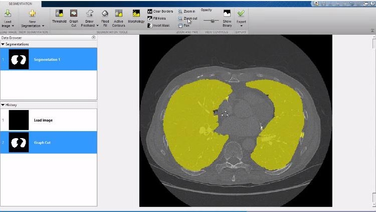View 3D capabilities, including the Volume Viewer app available in Image Processing Toolbox.